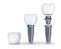 Dental Implant Post, Abutment and Crown next to each other for Hillsboro Dentist at Century Dental.