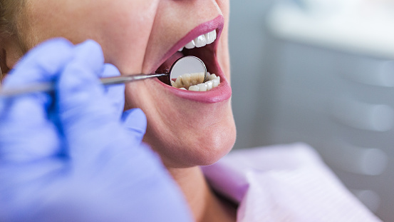 Dentist checking for signs of oral cancer during a dental exam - Century Dental in Hillsboro, OR
