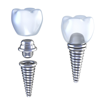A diagram of a dental implant used at Century Dental,  Hillsboro OR