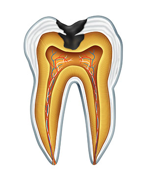 Diagram of a tooth with tooth decay used by Hillsboro dentist at Century Dental.