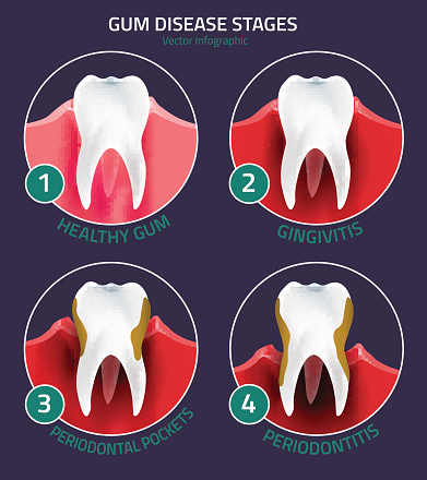 Diagram of stages of Gum Disease used by Hillsboro Dentist at Century Dental.
