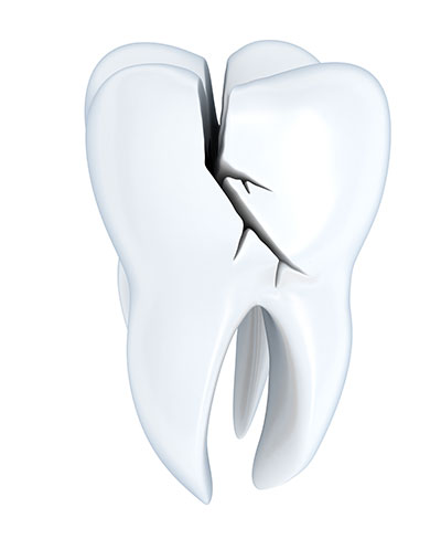 Does Chewing on a Cracked Tooth Do Damage to the Tooth?