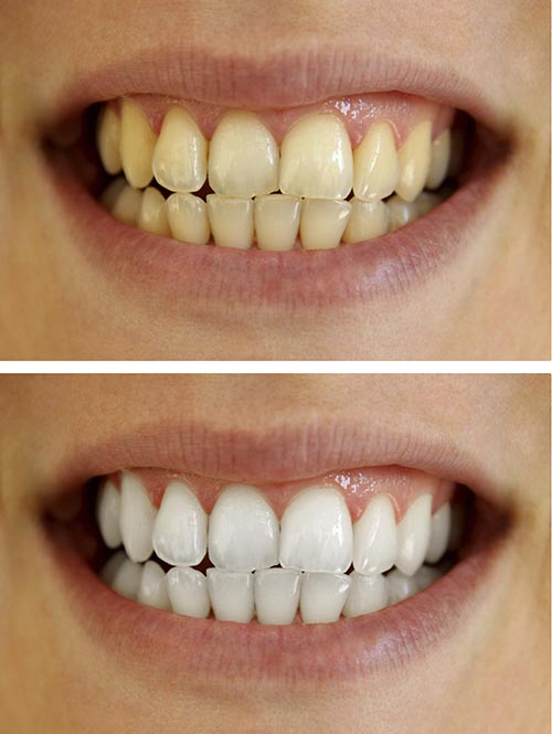 A patient's teeth before, and after a whitening treatment.