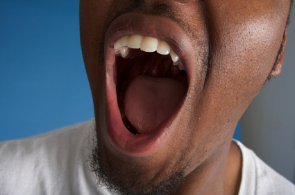 A close up of a man suffering from dry mouth.