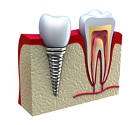 3d graphic side view of a Dental Implant fused with the bone for education by Hillsboro dentist, Century Dental.