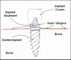 ilustration of a dental implant used by hillsboro dentist at Century Dental.